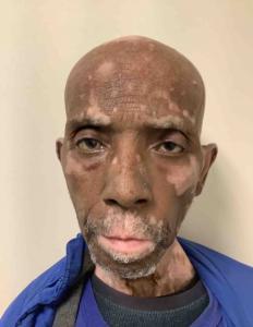 Harold Scharkley a registered Sex Offender of Tennessee