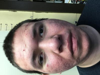 Mousseau Anthony Edwin a registered Sex Offender of South Dakota